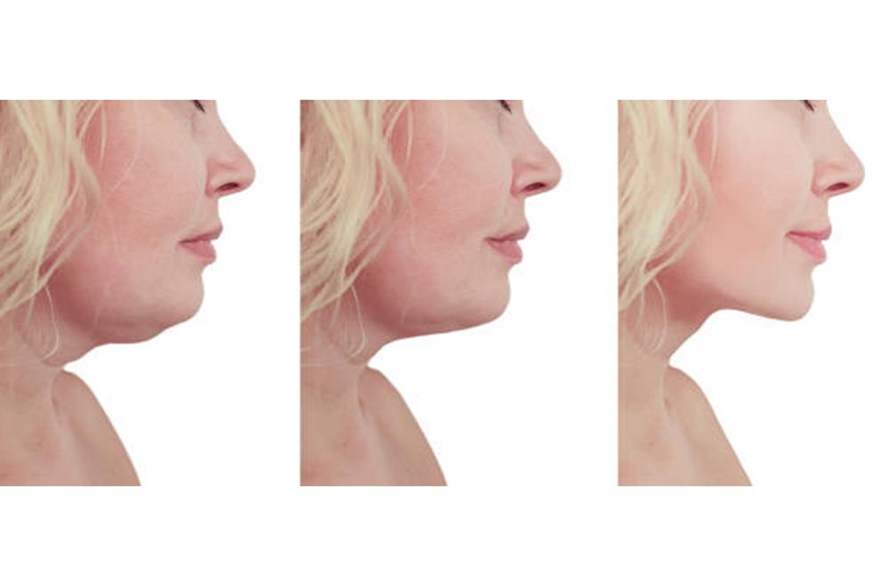 removing double chin in aventura, fl